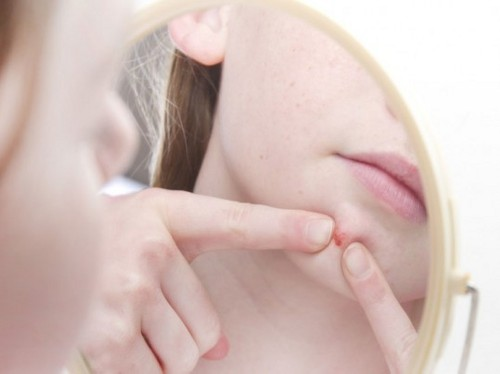 acne High Glycemic Food Links Acne to Diet